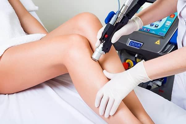 Лазерное лечение Дека